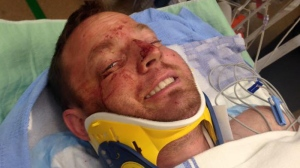 Engineer George Knoll suffered 50 puncture wounds after a grizzly bear charged and bit him.