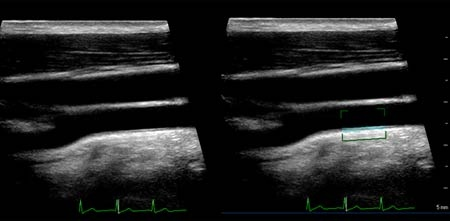 This image from Dr. Geetha Raghuveer's presentation shows the carotid artery ultrasound of a 12-year-old boy who had a CIMT of 0.54 mm.