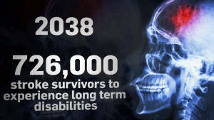 CTV National News: Troubling stroke numbers