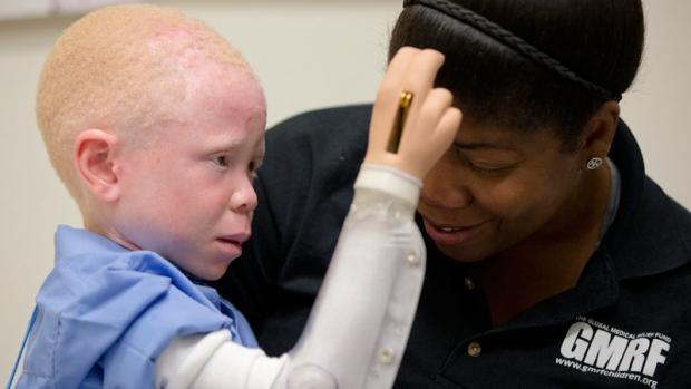 Baraka Lusambo of Tanzania has albinism