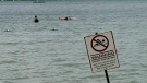 CTV Barrie: Beach postings