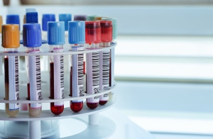 An experimental blood test may be able to predict whether a woman with breast cancer will suffer a relapse months before new tumors would be detectable on scans, researchers said Wednesday. (©angellodeco/shutterstock.com)