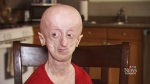 Devin Scullion, who has progeria, is turning 19-years-old -- a birthday his mother never thought she'd be able to celebrate with her son.