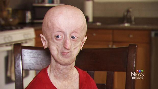 progeria disease essay