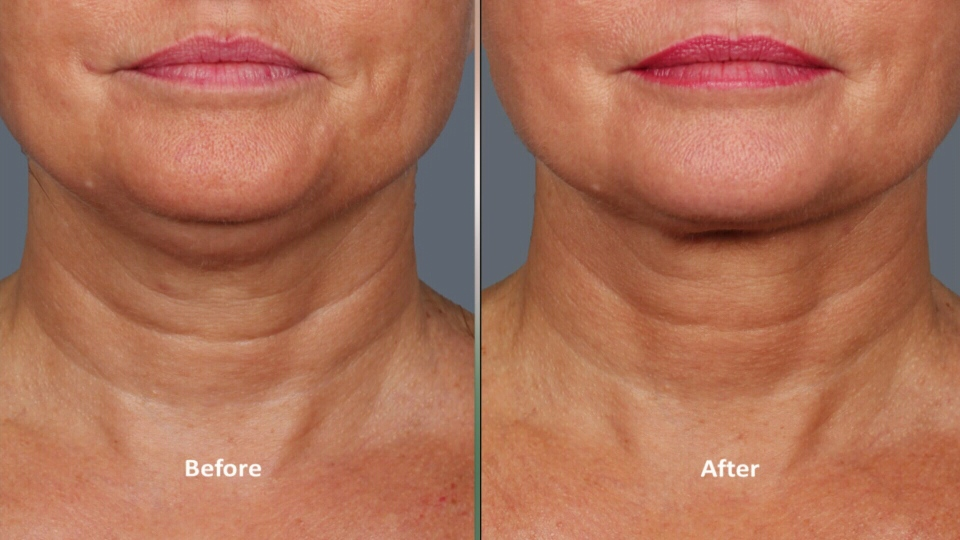 Before and after slide from the Kybella treatment for double chin, which was approved by the FDA earlier this year.
