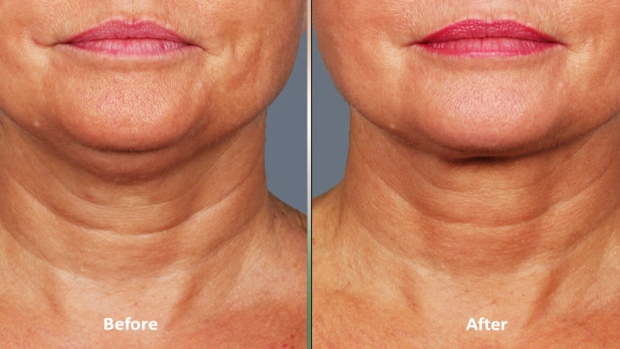 New treatment promises to melt away double chins | CTV News