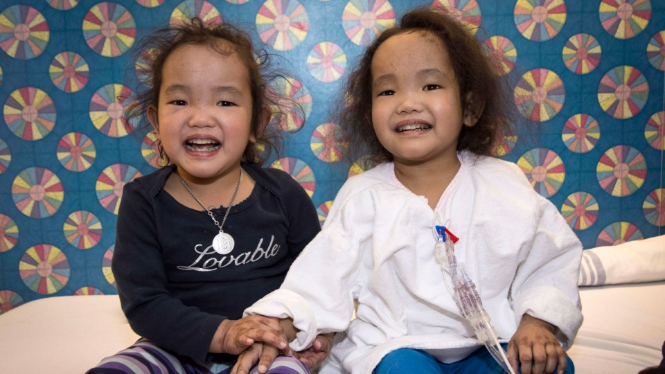 Binh (right) and Phuoc Wagner pose for a photo in Toronto, Monday, April 20, 2015. Binh, a three-year-old girl from Kingston, Ont., has received a liver transplant two months after her twin sister Phuoc underwent the same surgery to combat a potentially fatal genetic disorder.(HO-Courtesy of SickKids / THE CANADIAN PRESS)