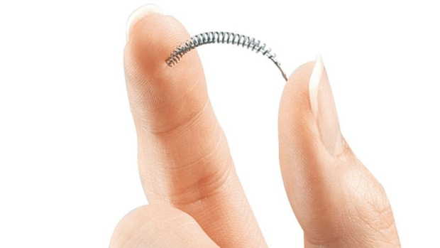 Overview of Essure Birth Control Complications