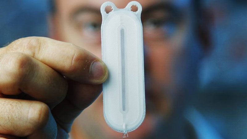Michael Scott, a ViaCyte vice president, holds the VC-01 device that holds stem cells that will mature to make insulin. (K.C. Alfred)