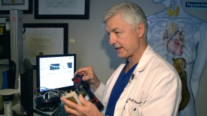 Dr. Joseph Lawrence, a chiropractor at the Broadview Spine & Health Centre, shows off his concussion treatment tool in Ottawa on Oct. 7, 2015.