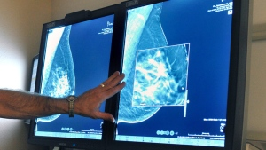 In this Tuesday, July 31, 2012, file photo, a radiologist compares an image from earlier, 2-D technology mammogram to the new 3-D Digital Breast Tomosynthesis mammography in Wichita Falls, Texas. (Torin Halsey/Times Record News via AP)