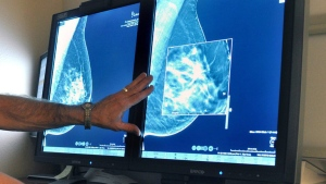 FILE - A radiologist compares an image from a 2-D technology mammogram to 3-D Digital Breast Tomosynthesis mammography in Wichita Falls, Tex., on Tuesday, July 31, 2012. (Torin Halsey/Times Record News via AP)
