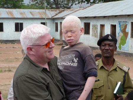 Peter Hunt and albino child