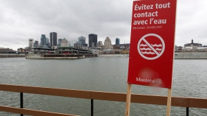 A sign warns to avoid contact with the water along the shore of the St. Lawrence River, in Montreal, Friday, Nov. 13, 2015. (Ryan Remiorz / THE CANADIAN PRESS)