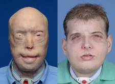 Face transplant before and after