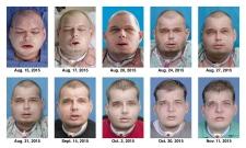 Face transplant transition