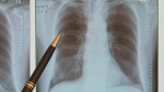 Researchers in England have taken an important step toward better lung cancer treatment. Using experimental tests that detect bits of DNA that tumours shed into the blood, they were able to track genetic changes in early-stage cases over time, so treatment could be adjusted.