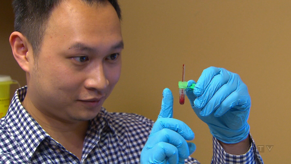 Ten pharmacies in British Columbia are now offering one blood testing system called HealthTab.