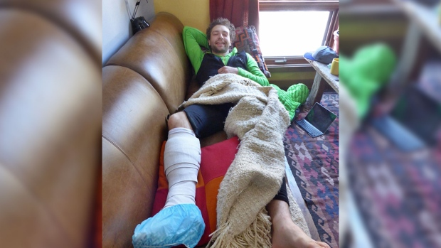 Greg Boswell recovers from a grizzly bear attack in this photo by Nick Bullock, posted on his blog nickbullock-climber.co.uk.