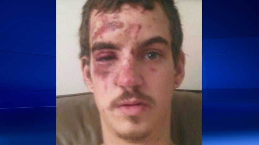 Cyclist Luke Chartrand collided with a VIA train in London, Ont. Saturday, Dec. 6, 2015. (Luke Chartrand / Facebook)