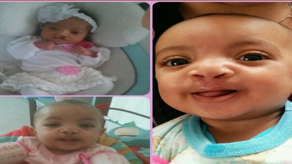 Terra Mercer's daughter, Aaleyah was born with with a cleft lip and cleft palate.