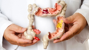 A plastic model of a colon. (ericsphotography/ Istock.com)