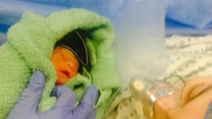 Baby Sal was born on Dec. 25, 2015, at 26-and-a-half weeks, weighing 1.9 pounds. (CTV News).