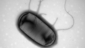 An electron micrograph image of E.coli is shown. MCR-1, a gene that makes bacteria resistant to antibiotics, has been detected in stored samples of E. coli collected in Canada in 2010. (THE CANADIAN PRESS/HO-Brian Coombes Laboratory, McMaster University)