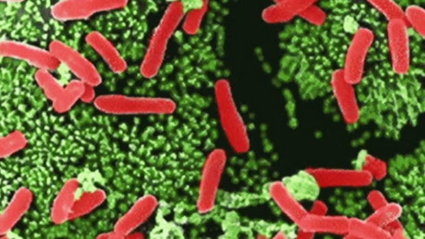 Investigators find another superbug case in the US