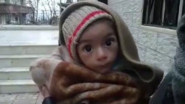 Starving children in besieged Syrian village