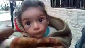 CTV National News: Starvation in Syrian villages