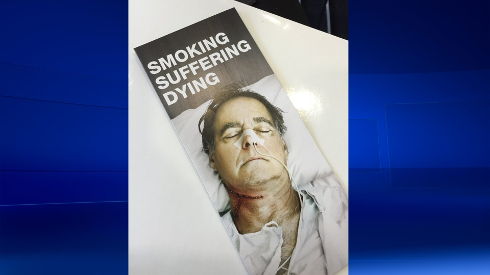 """""""Smoking, suffering, dying"""" is the slogan for 2016's anti-tobacco campaign"""