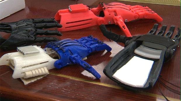 3D printer, 3D, prosthetics, prosthesis, prostheti