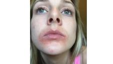 Rachael Cronin after using EOS lip balm