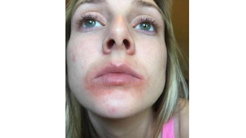An image showing Rachael Cronin after using an EOS product, presented in her lawsuit.