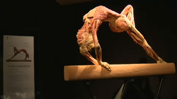 Guests Advised Of Sensitive Imagery Prior To Body Worlds Vital S Calgary Run Ctv News
