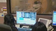 Uterine fibroid treatment