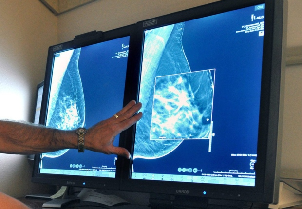 In this Tuesday, July 31, 2012, file photo, a radiologist compares an image from earlier, 2-D technology mammogram to the new 3-D Digital Breast Tomosynthesis mammography in Wichita Falls, Texas. (Torin Halsey / Times Record News via AP)