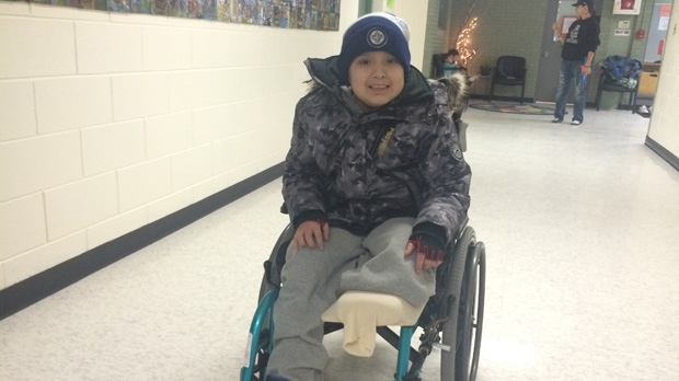 Classmates of nine-year-old David Stevenson organized a fundraiser to help his family after doctors amputated his leg due to an infection.