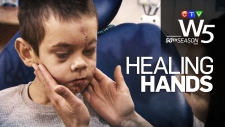 W5: Healing Hands promo
