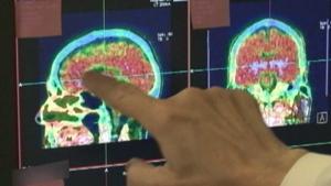 Concussions brain health