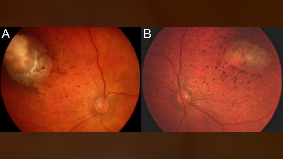 This combination of images provided by the American Medical Association shows abnormalities at upper left and upper right on the back areas of the inner eyes of a 1-month-old boy diagnosed with microcephaly due to a possible Zika congenital infection. In results published in JAMA Ophthalmology on Tuesday, Feb. 9, 2016, researchers found eye damage in 10 of 29 babies born with microcephaly at the Roberto Santos General Hospital in Salvador, Brazil. (American Medical Association / JAMA)