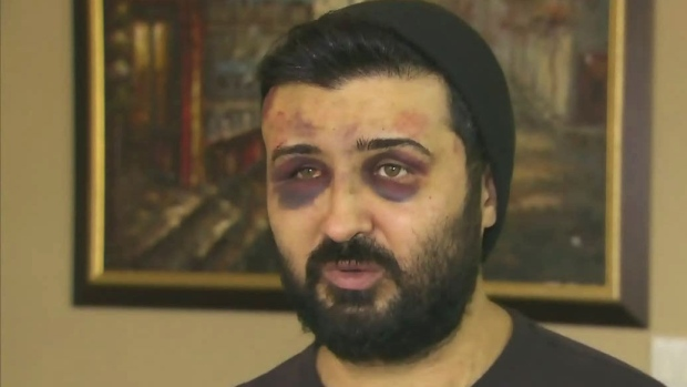 CTV Toronto: Man tells story of kidnapping