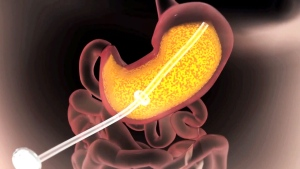 AspireAssist can drain up to 30 per cent of the food that a user has just eaten out of their stomach before it becomes digested.