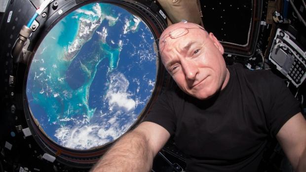 Year in space put U.S. astronaut's disease defences on alert