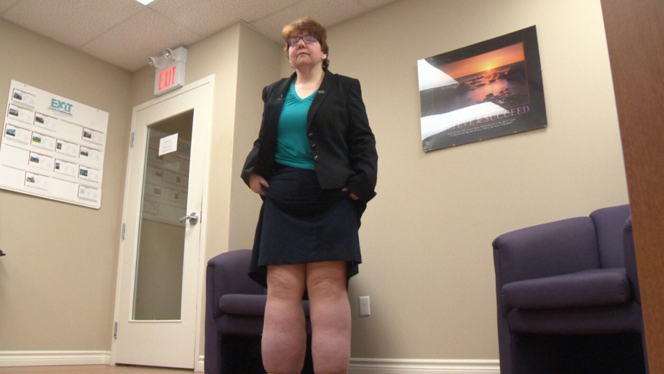 Karen Bingham is spearheading a campaign to raise awareness about lymphedema.