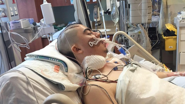 Mason Woods, 23, had a wisdom tooth extracted on Feb. 27. He is now in critical condition from what his mother says are complications arising from the surgery. (Photo courtesy of Marlynn Justine Smith/Facebook)