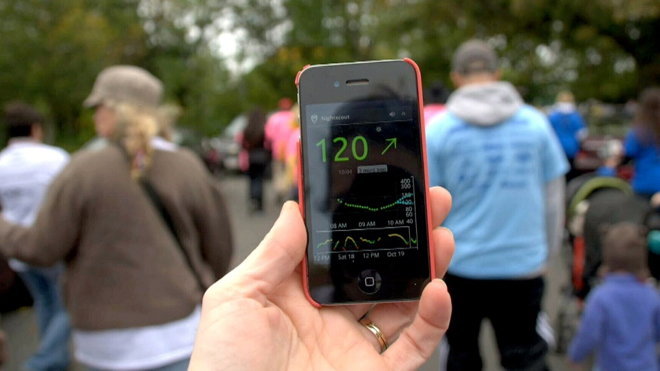 Dubbed Nightscout, volunteers have rewritten software code to upload data collected by blood sugar monitors to the cloud via a smartphone or smartwatch connected to the device.