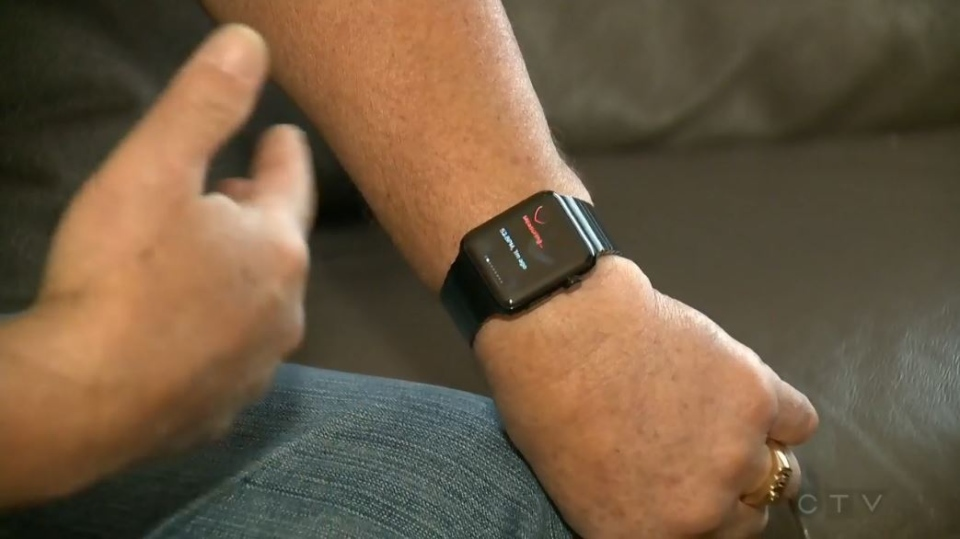 Dennis Anselmo of Edmonton is crediting his Apple Watch with alerting him to his elevated pulse rate.
