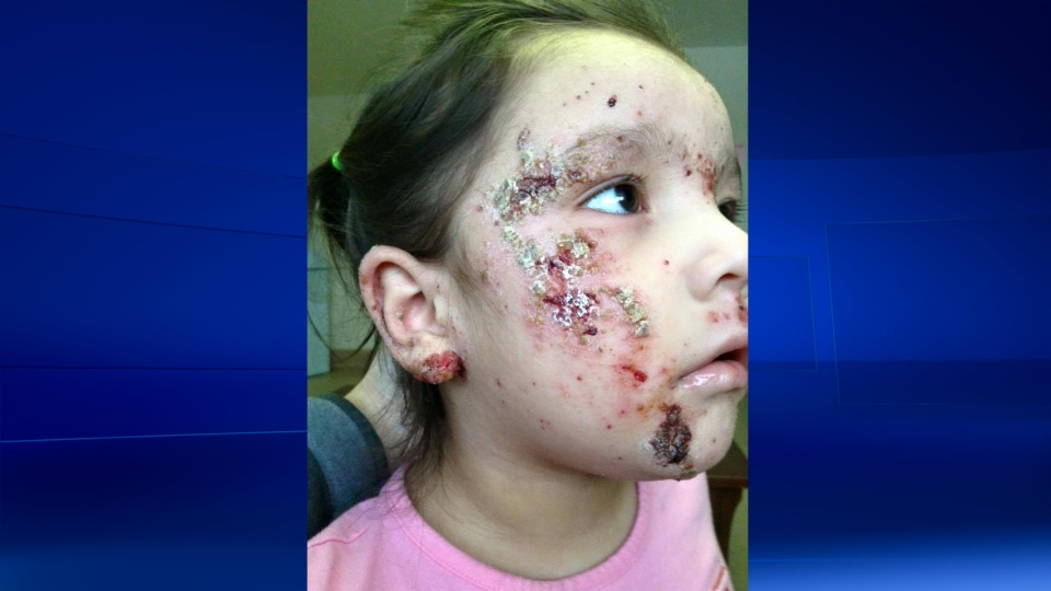 Some children in Kashechewan First Nation have developed rashes and even painful sores on their bodies. (Tasheena Wesley)